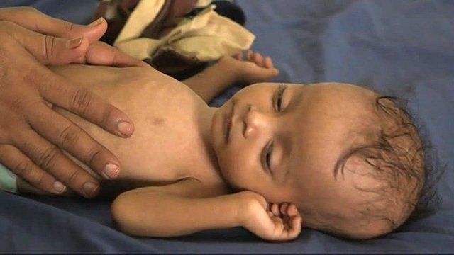 A children suffering from malnutrition in Yemen