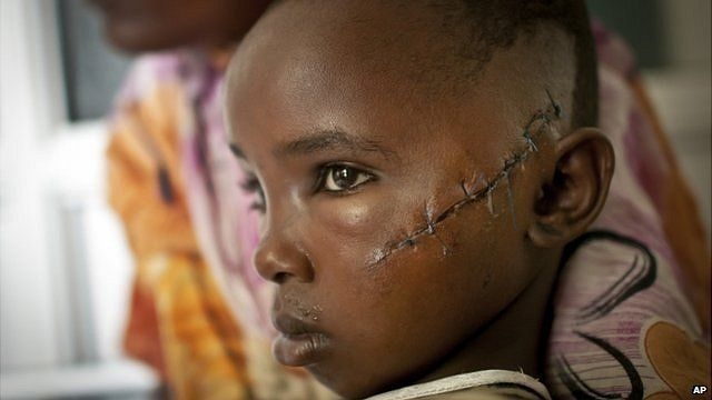 Jamila Yakobo who was slashed by a machete while she was trying to flee with her father from an attack on her village of Kilelengwani