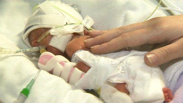 Media player Baby Kai was born at 24 weeks
