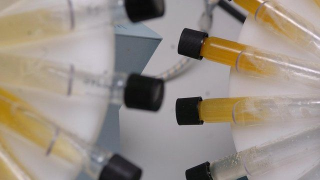 A urine sample being tested for drugs
