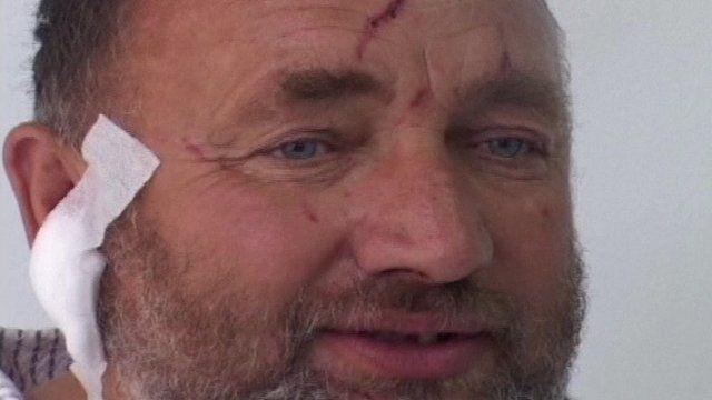 Blazo Grkovic, 48