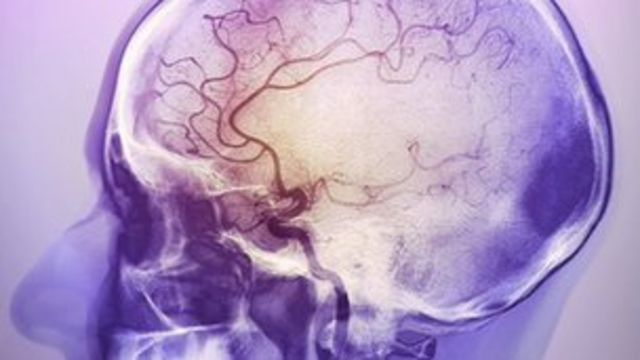 Stroke drug can 'boost quality of life'