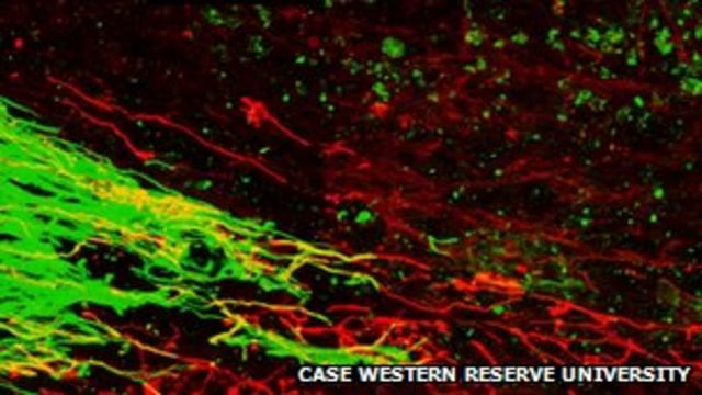 Nerve cells 're-grown' in rats after spinal injury