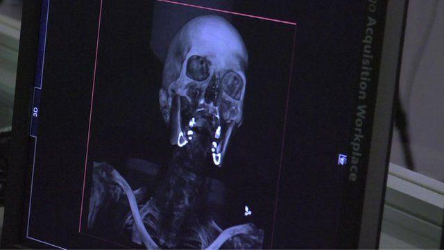 3D CGI image of a skeleton