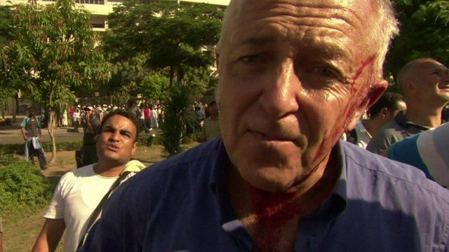 The BBC's Jeremy Bowen was hit by shot gun pellets above the ear