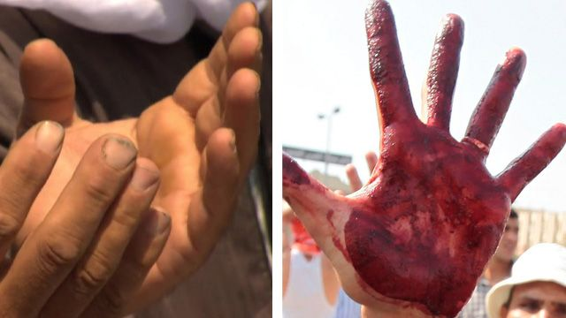 Hands in prayer and bloodied