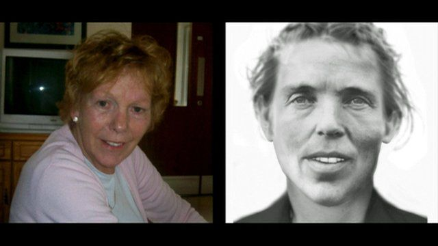 Phyllis Dunleavy and the facial reconstruction