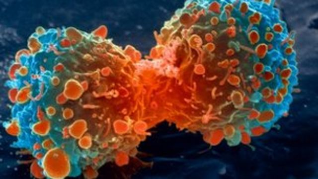 Lung cancer 'secrets' to be probed