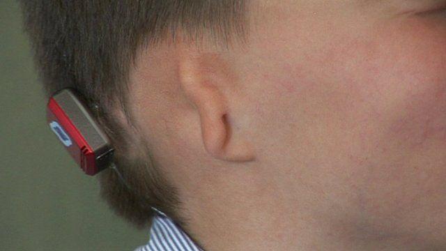Close-up of Kieran Sorkin who has no ears