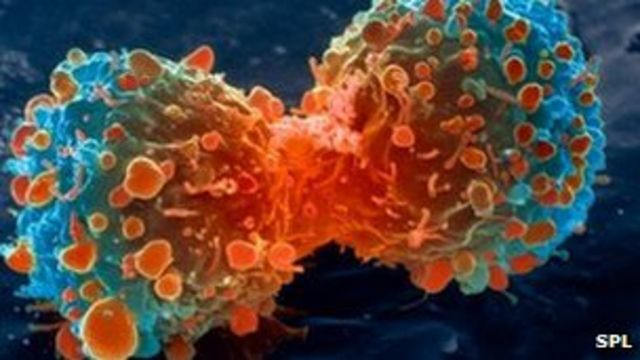 Immune system boost 'fights cancer'