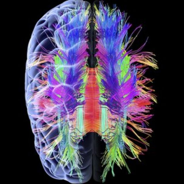 Protein clue to old-age memory loss