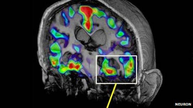 Alzheimer's brain scan detects tau protein