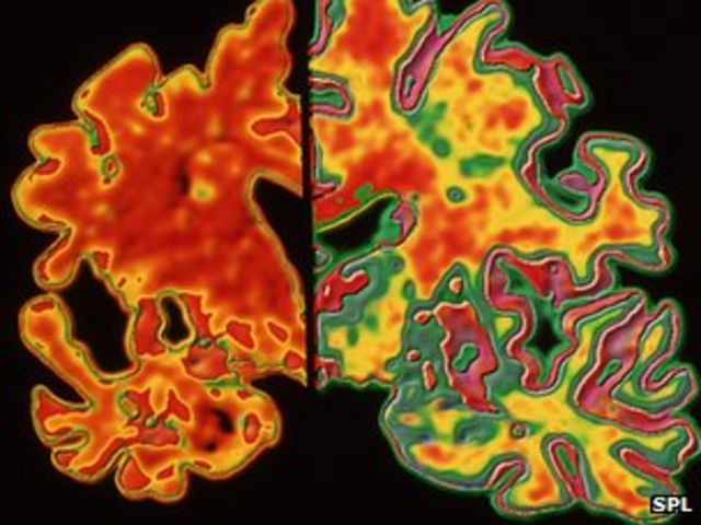 Alzheimer's breakthrough: Cure or hype?