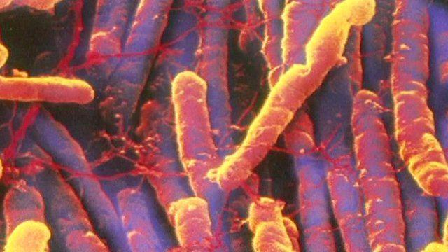 Superbug c-diff
