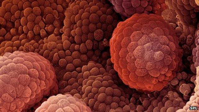 Prostate cancer aggression test 'may avoid needless ops'