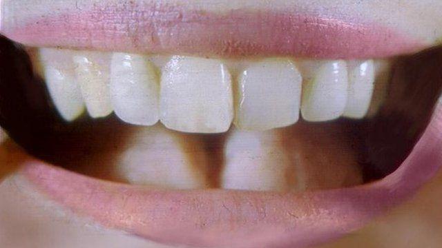 An open mouth