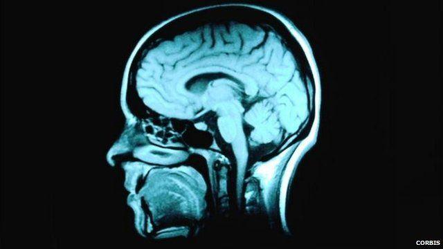 Imaging of human brain