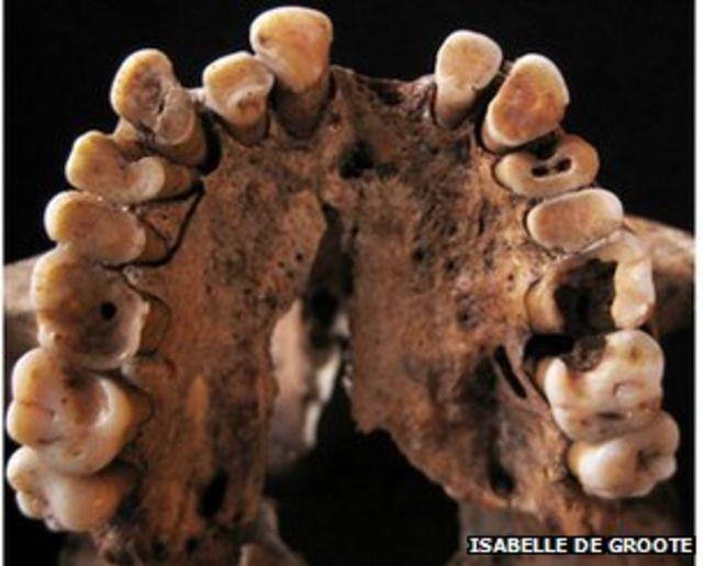 Moroccan Stone Age hunters' rotten teeth