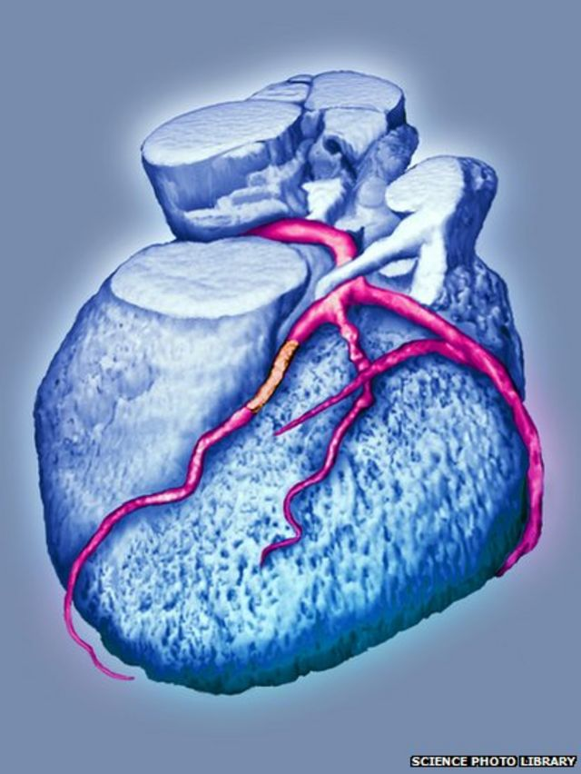 Angioplasty and its revolutionary impact over 50 years