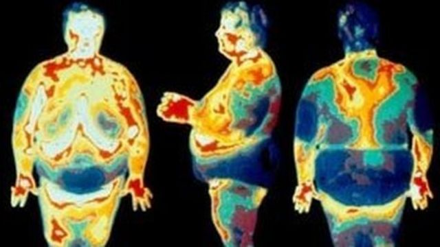 Weight loss surgery: Up to two million could benefit