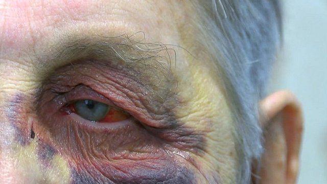Ian McCann with a black eye