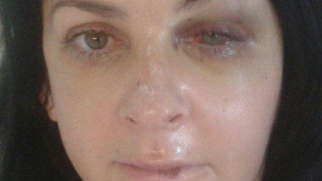 Morag Fisher broke her cheek, wrists, eye socket and injured her back in the fall