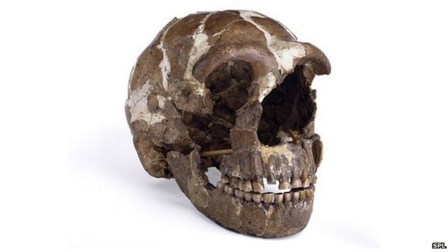 Neanderthals gave us disease genes