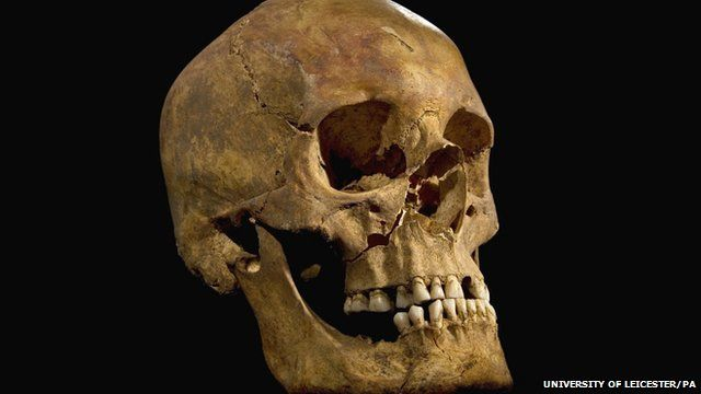Skull of Richard III