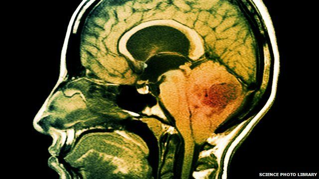 Brain scan showing a tumour