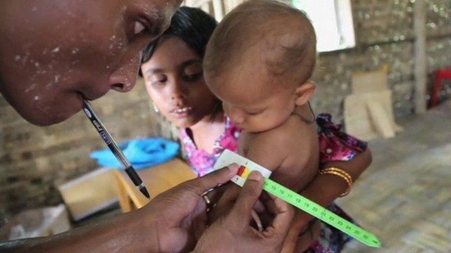 Doctor checking young child