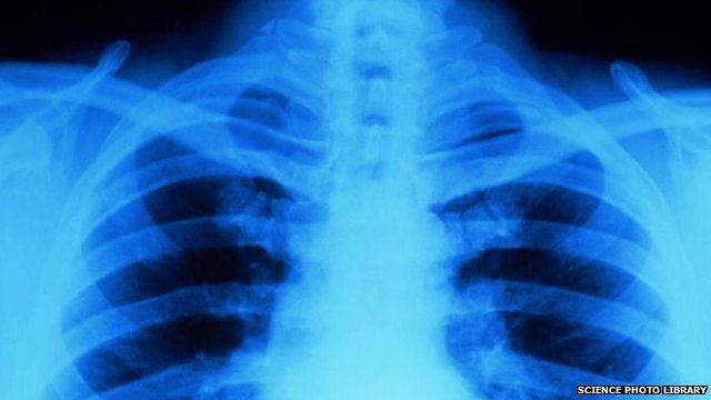 X-ray of a person's chest