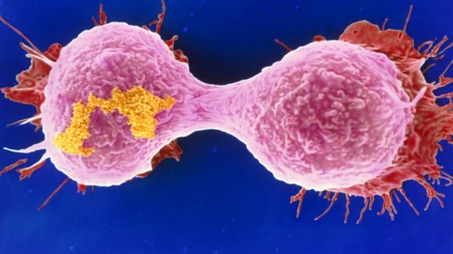 Call for change to breast cancer screening approach
