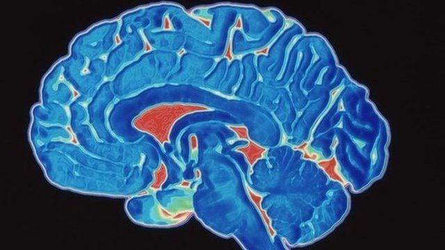 A coloured CT scan image of a human brain