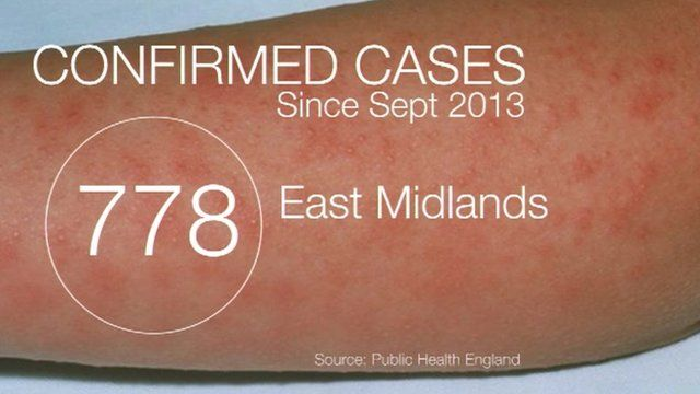 Latest figures show 778 reported cases since September