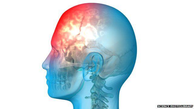 Conceptual image of a person's brain