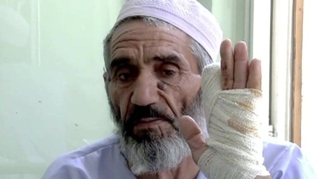 A wounded man