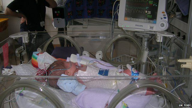 Babies are cooled for three days on special cooling mats