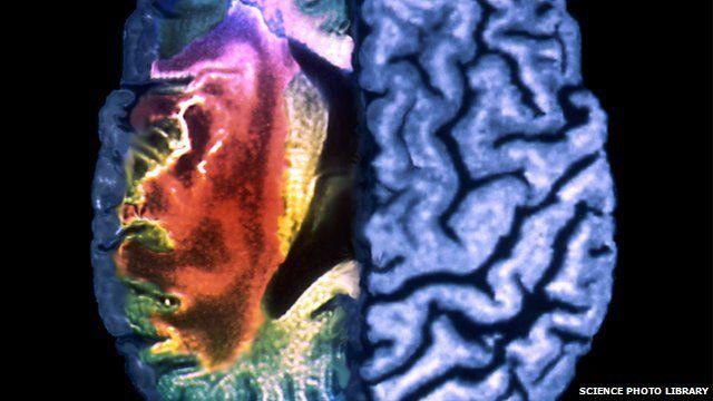 MRI scan of stroke