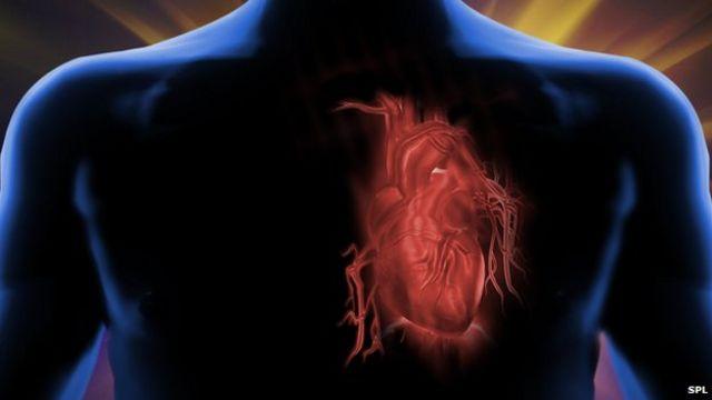 Heart disease giving way to cancer as top killer of men