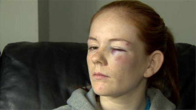 Shannon Thompson said she was struck in the face with a piece of wood