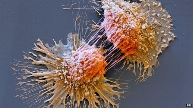 Cancer gene test 'would save lives'