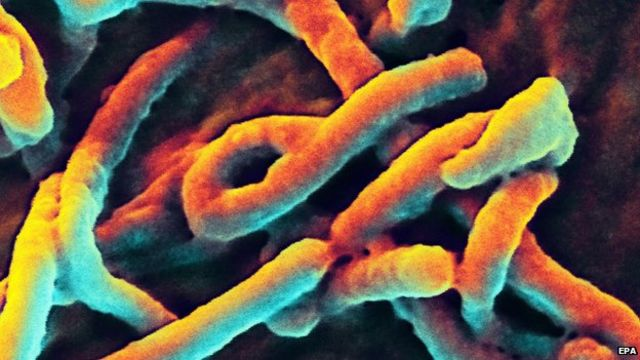 Ebola challenge 'biggest since HIV/Aids' - US