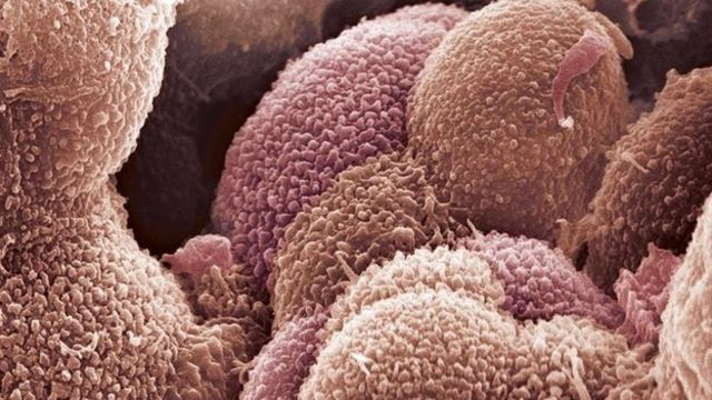 New test 'helps identify best ovarian cancer treatment'