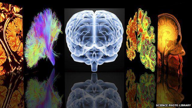 Neurology computer scans