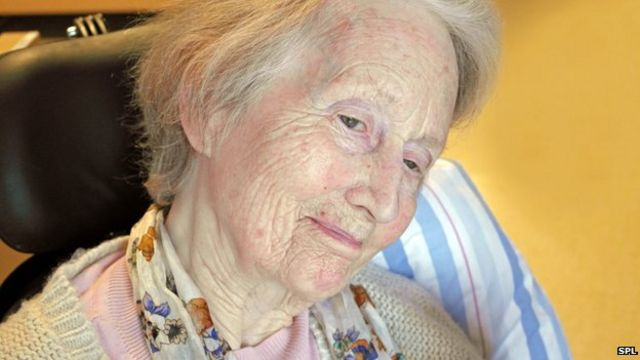 Dementia is leading cause of death for women