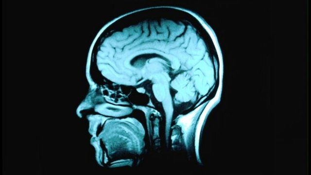 An MRI scan of the human brain