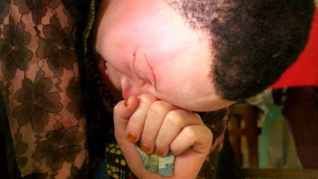 An albino woman crying