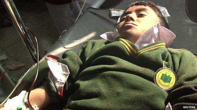 Schoolboy in uniform receiving medical treatment following Pakistan school attack