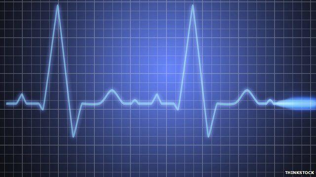 An ECG (electrocardiogram)