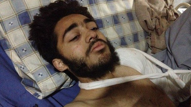 Mohammad Hilal in Peshawar hospital, Pakistan, 17 December 2014
